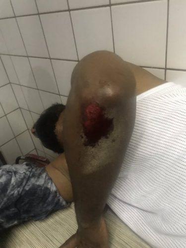 , FreeSowore: Suspected Hoodlums Attacked Deji Adeyanju In Abuja (Photos)