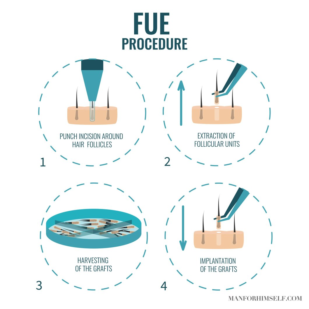 FUE-HAIR-TRANSPLANT-GRAPHIC