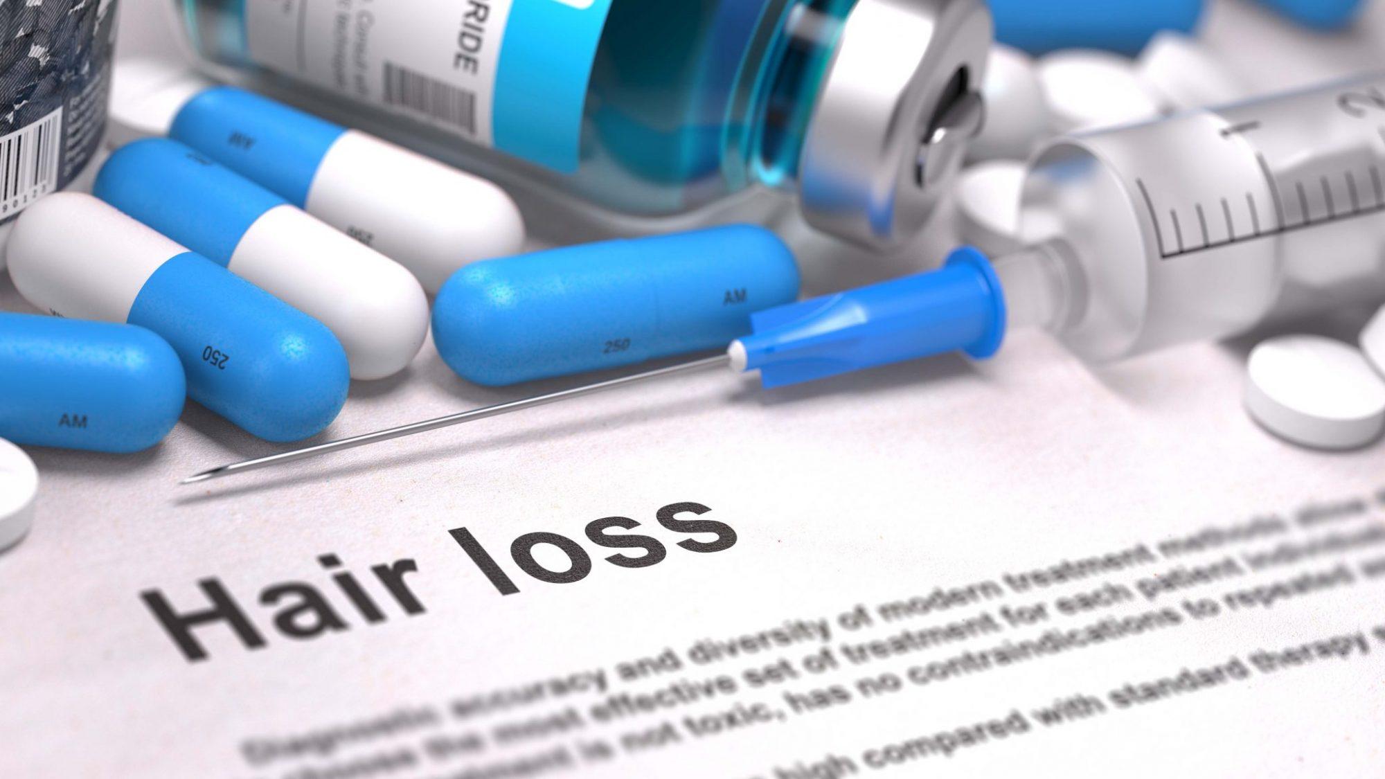 Finasteride - Hair Loss