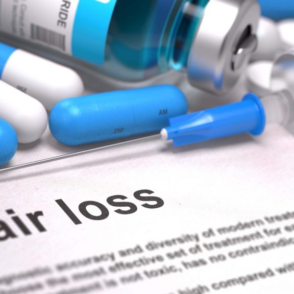 Finasteride vs. Minoxidil | Male Pattern Baldness