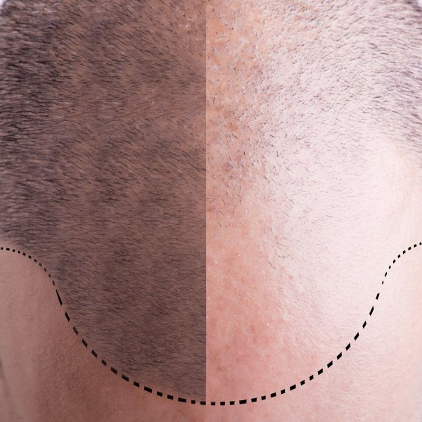 Can You Trust Your Hair Transplant Provider