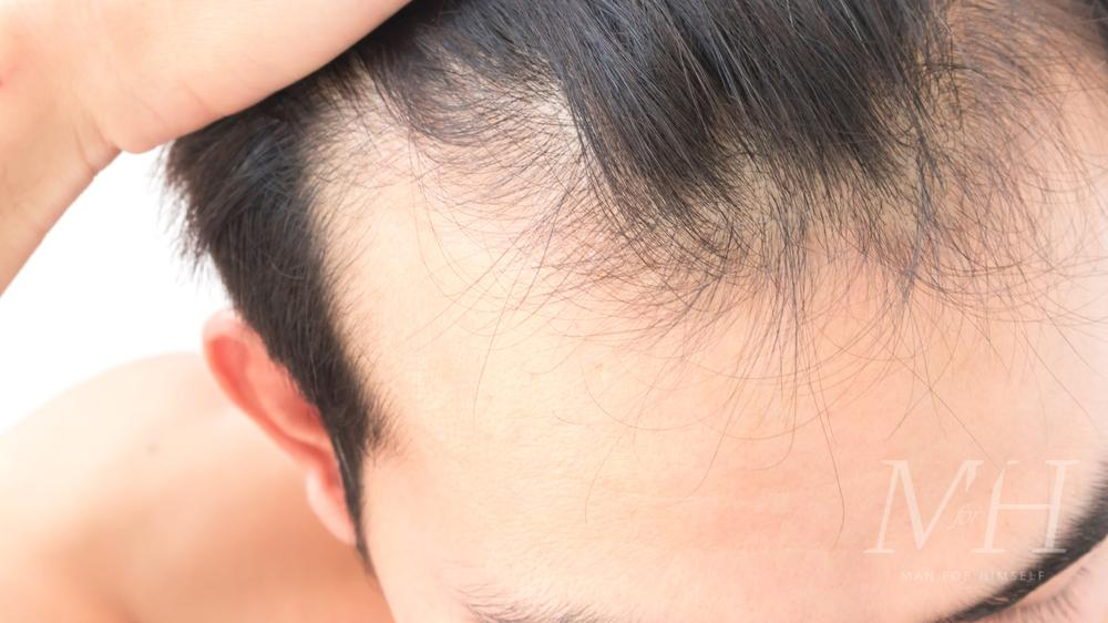 man-hair-loss-stop-how-to-man-for-himself
