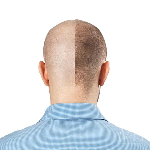 reverse-hair-loss-how-to-man-for-himself