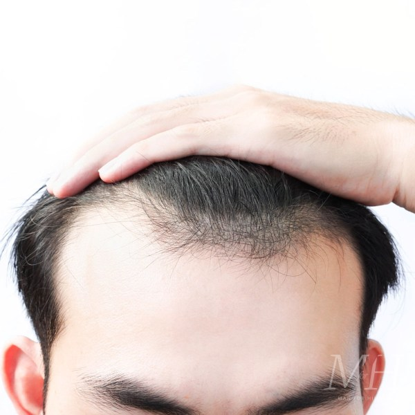 Hair Transplants Explained | Your Questions Answered