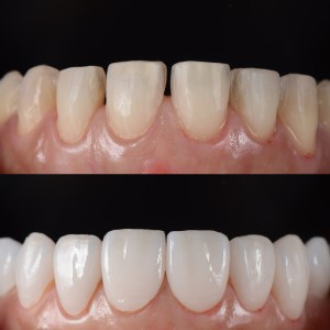 teeth before and after smile makeover procedures