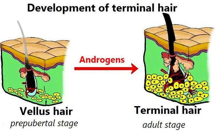 Understanding how long it takes to grow a beard. Development of terminal hair.
