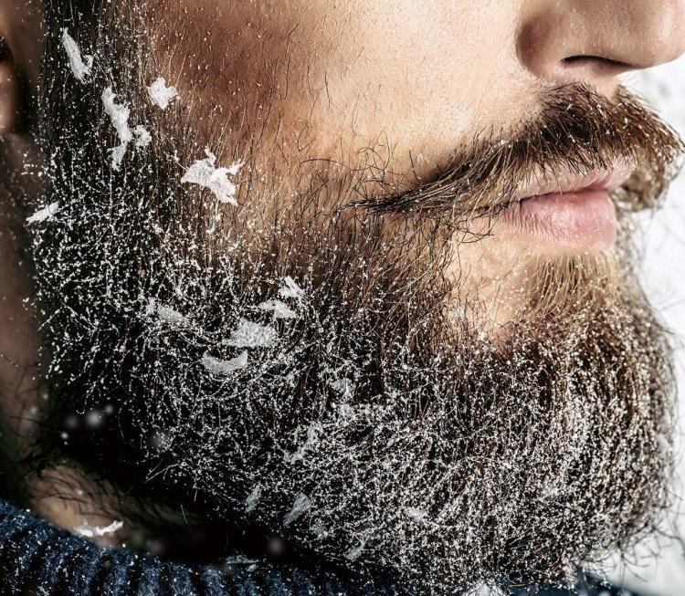What is beard dandruff and how can you actually get rif of it and prevent it from appearing