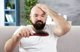 How long does it take to go bald