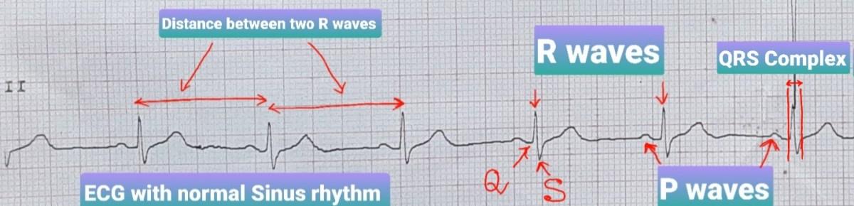 ECG with normal sinus rhythm