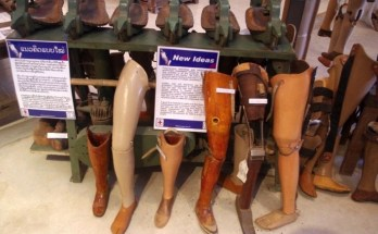 How to Buy an Artificial Leg in Laos (and why you probably should)