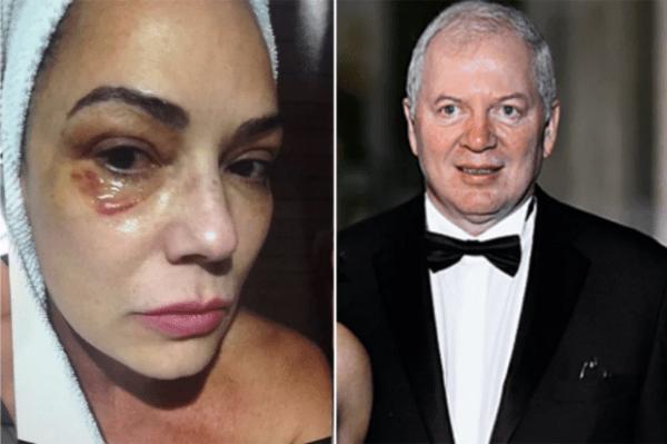 Luiza Brunet perde na Justiça e fica sem direito à fortuna do ex