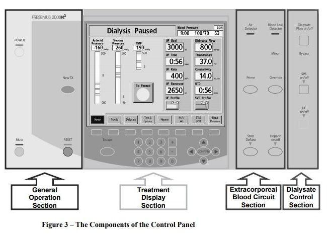 Fresenius 2008K2 Hemodialysis Machine  Operator's Manual – Free PDF download