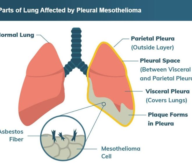FDA Approves Drug Combination for Treating Mesothelioma (cancer caused by asbestos fibers)