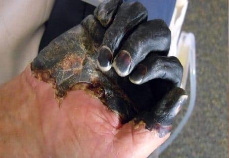 مرض الطاعون: كل ما تريد معرفته عن هذا الوباء الخطير