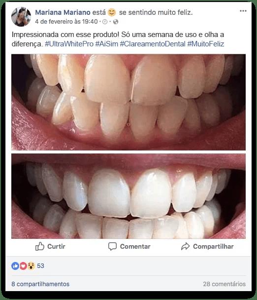 Ultra White Pro depoimento 2