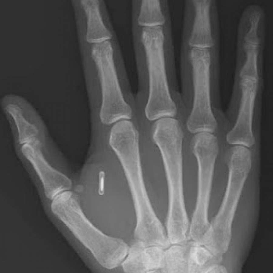 Microchips in Hand X-Ray