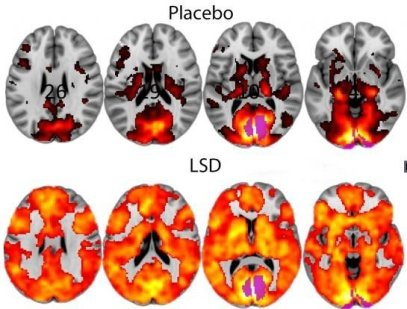 LSD placebo brain scan images
