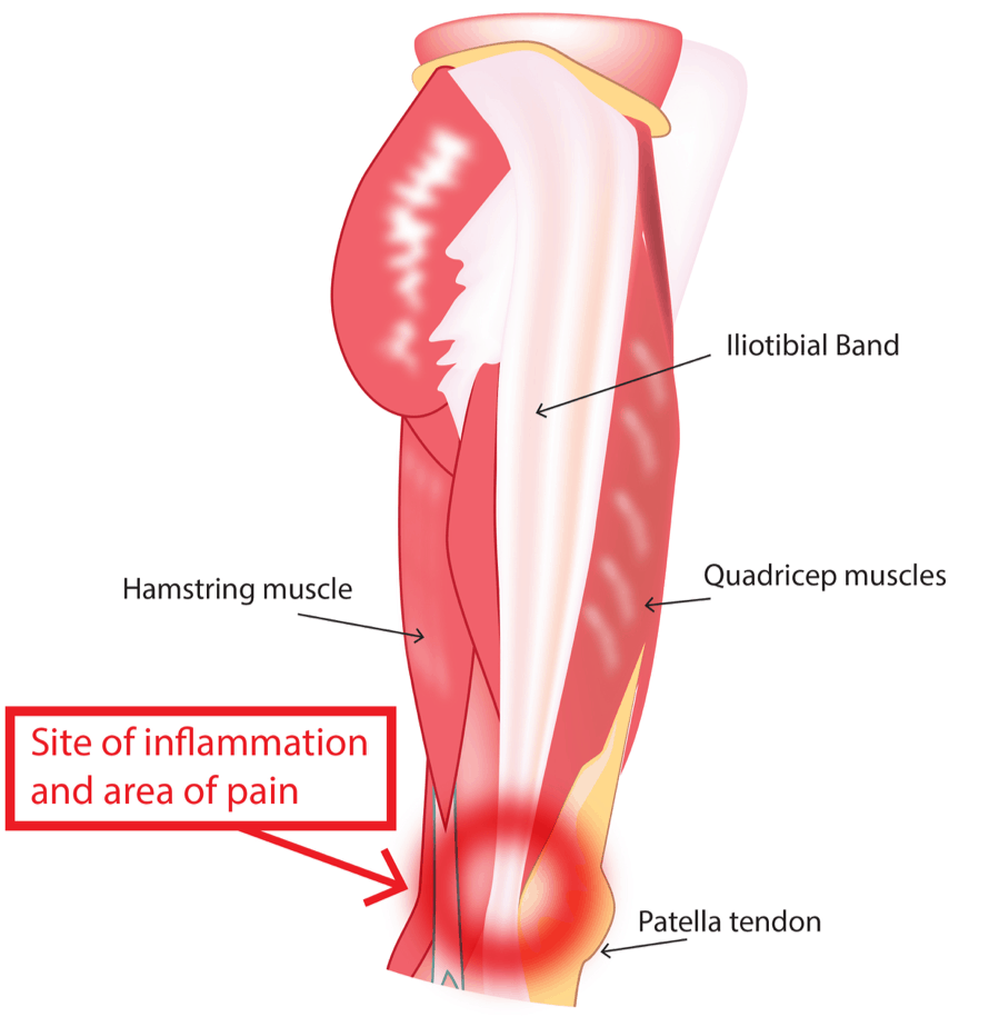 Iliotibial Band Syndrome for Runners: What It Is, How To Overcome It 15