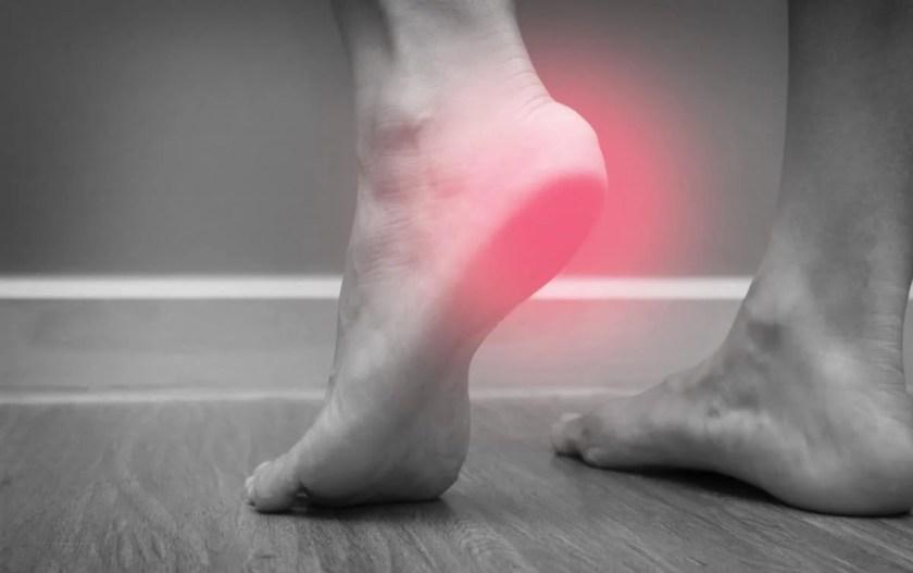runners feet plantar fasciitis