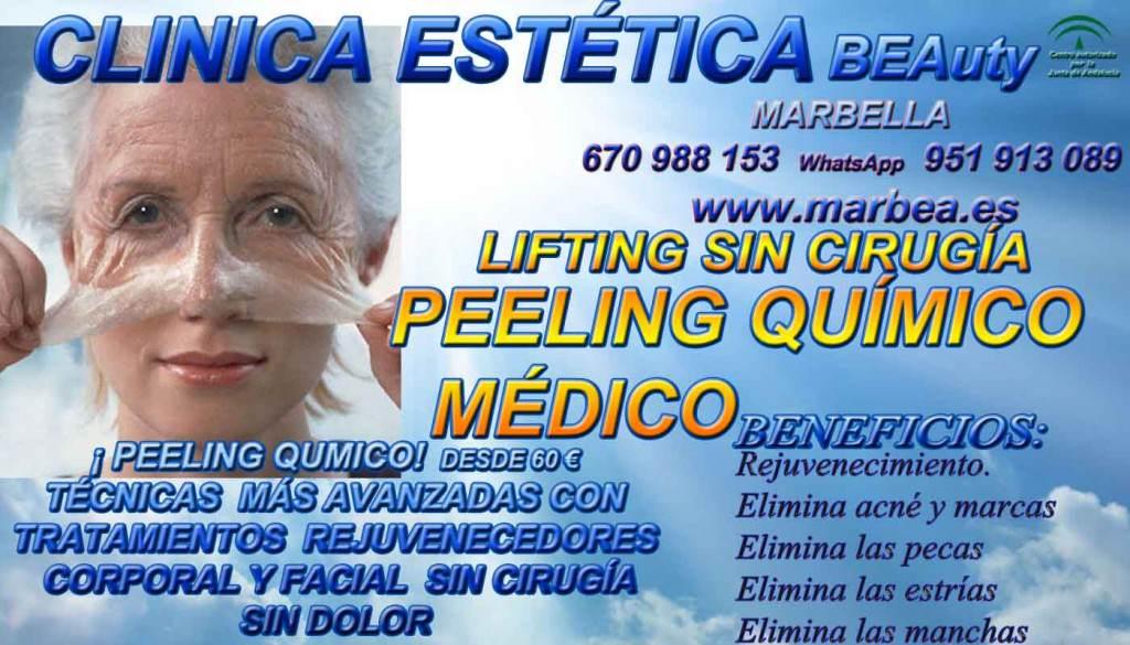CLINICA ESTÉTICA MARBELLA ofrece PEELING QUÍMICO MÉDICO FACIAL, PARA ELIMINACIÓN O QUITAR ACNÉ , MARCAS Y CICATRICES | SOLUCIÓN CONTRA EL MANCHAS | PEELING FACIAL PARA TRATAR LAS CICATRICES DEL ACNÉ | PECAS | ESTRÍAS | MANCHAS