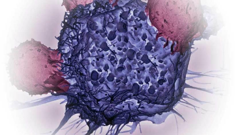 Imagen microscópica de tejido anormal.