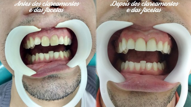Facetas de resina nos dentes