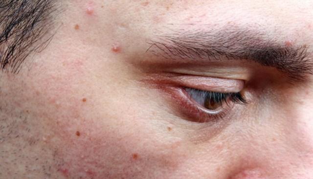 Tipos e graus de acne