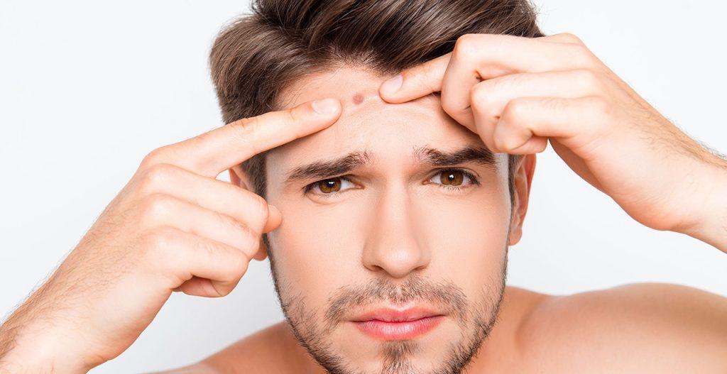Homem expremendo espinha do rosto