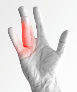 Malattia di Dupuytren medicina della mano