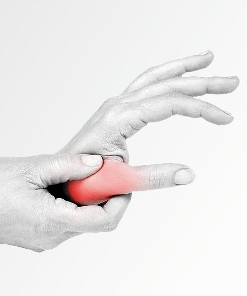 Rizoartrosi artrosi del pollice