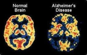 High Levels of Sugar and Insomnia Associate with the Alzheimer.