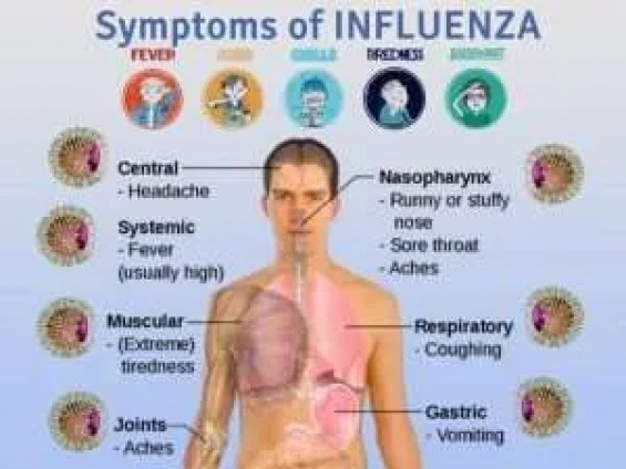 What are the symtoms of Influenza