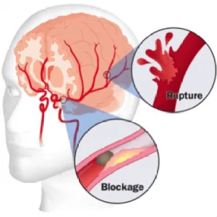 STROKE - Are You Living With a Silent Killer?