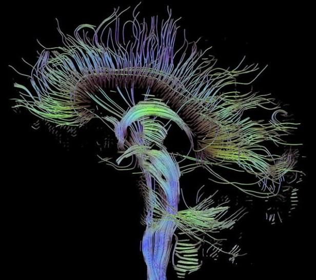 cerveau-humain