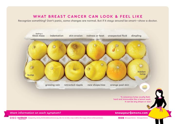 Εσύ ξέρεις τα 12 σημάδια του καρκίνου του μαστού;