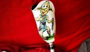 Gluby sur prothèse
