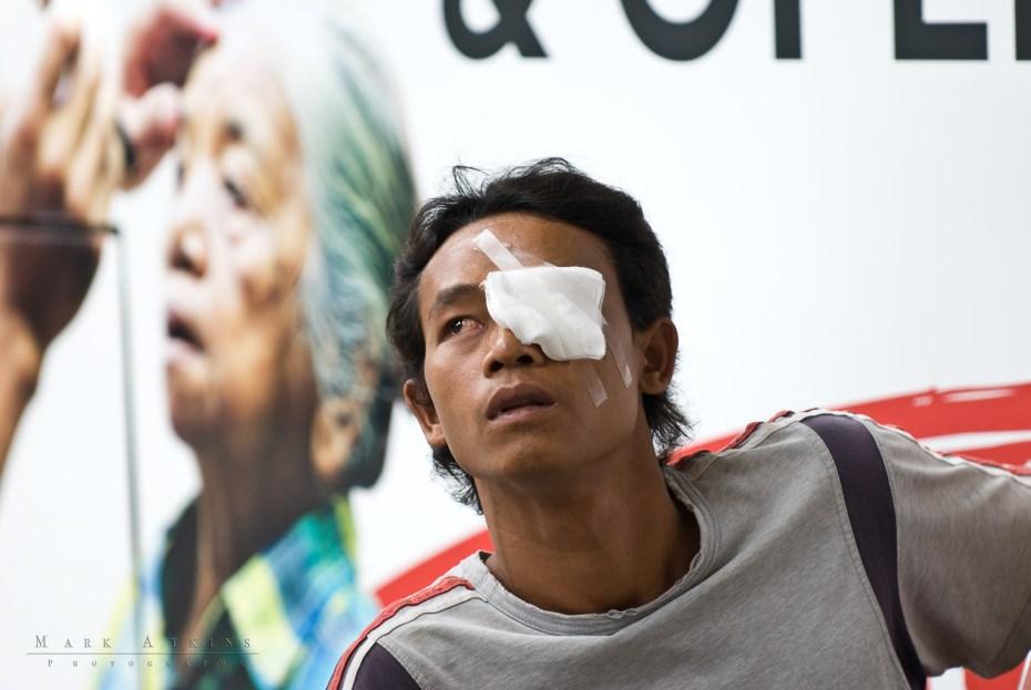 John Fawcett Foundation Bali Eye surgery Denpasar