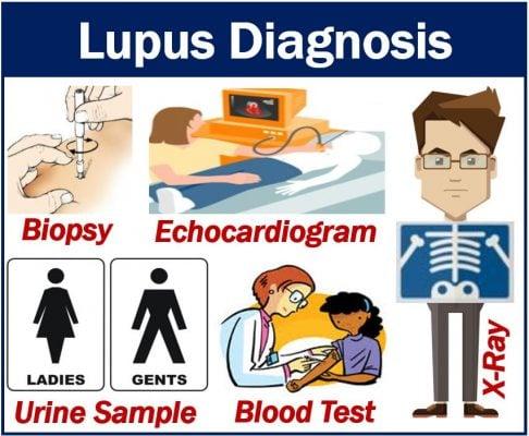 Lupus diagnosis