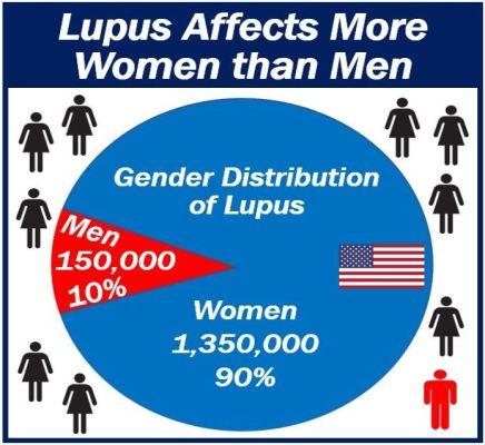 Lupus affects more women than men