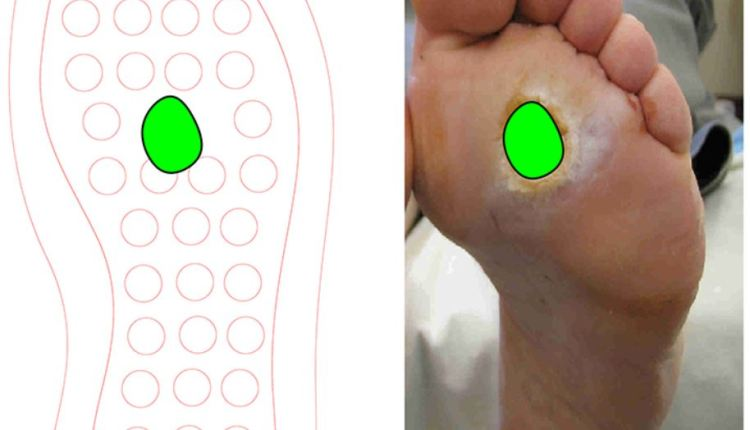 Customizing insole to treat specific diabetic ulcers