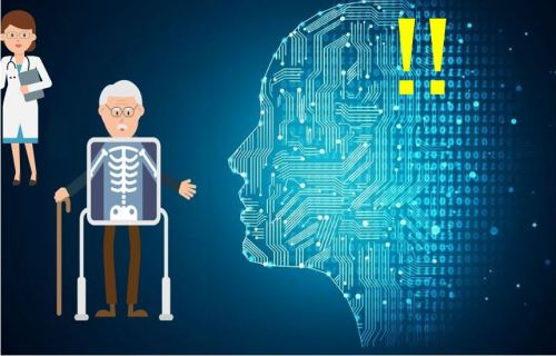 AI accelerates processing of X-rays - image 1