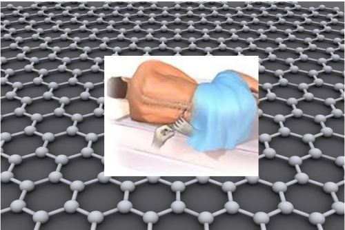 Using graphene to detect ALS