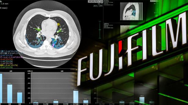 41เปอร์เซนต์ Fujifilm