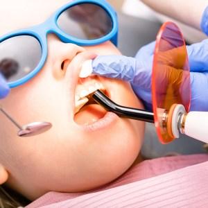 Dental Fillings (Restorations)