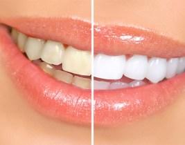Prix Jamais-Vu: Des dents blanches pour un sourire radieux au prix exceptionnel de 250dhs chez Beauty Smile!