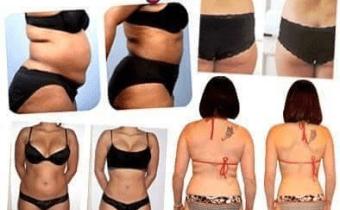 MAXI DEAL  !!!  – 70%  sur les soins Esthétiques Minceur  et Liporemodelage