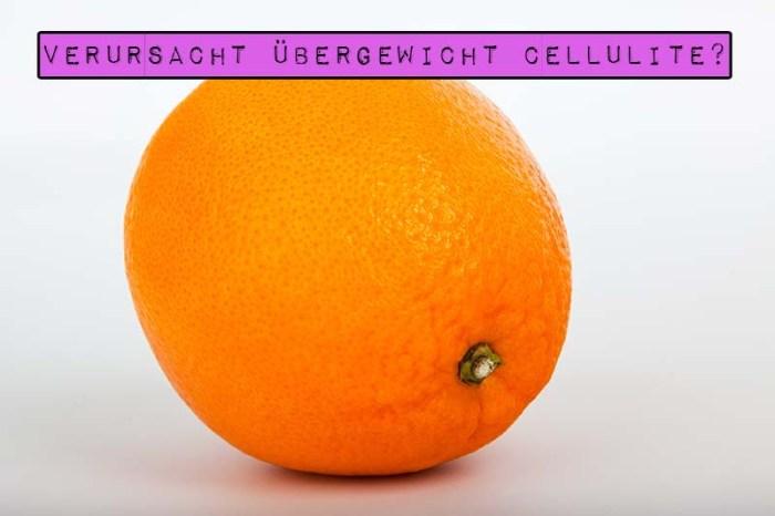 Marshmallow Mädchen verrät die Wahrheit über Orangenhaut und beantwortet die Frage: Verursacht Übergewicht Cellulite?