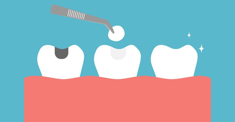 نخر الأسنان