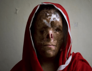 feminisme-als-pro-vrouwenverbranding