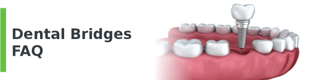 Dental Bridges FAQ